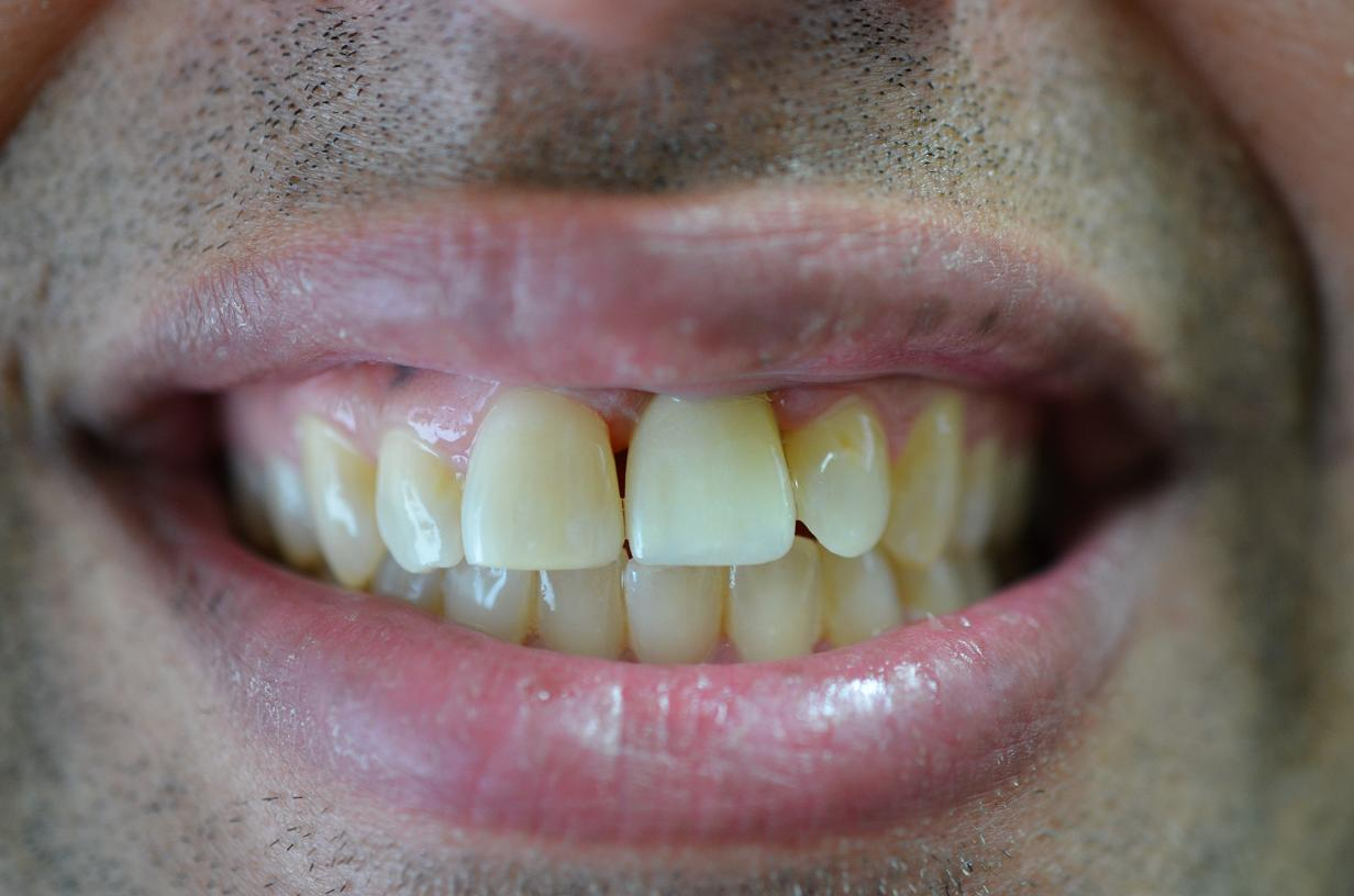 central incisor implant crown