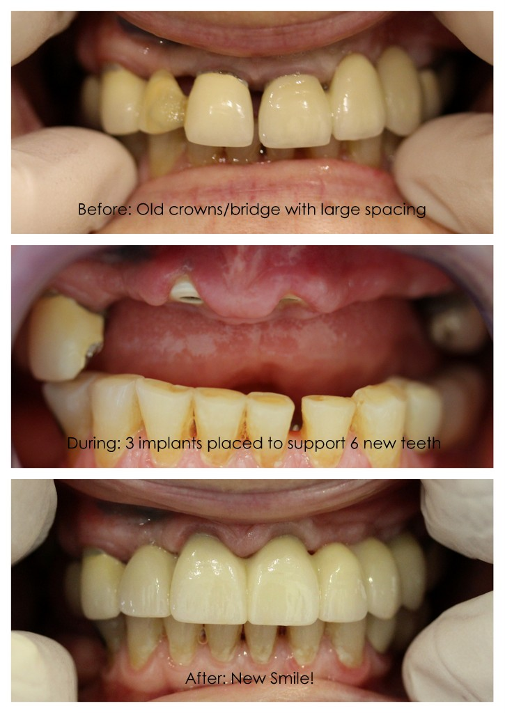 implant.retained.bridge