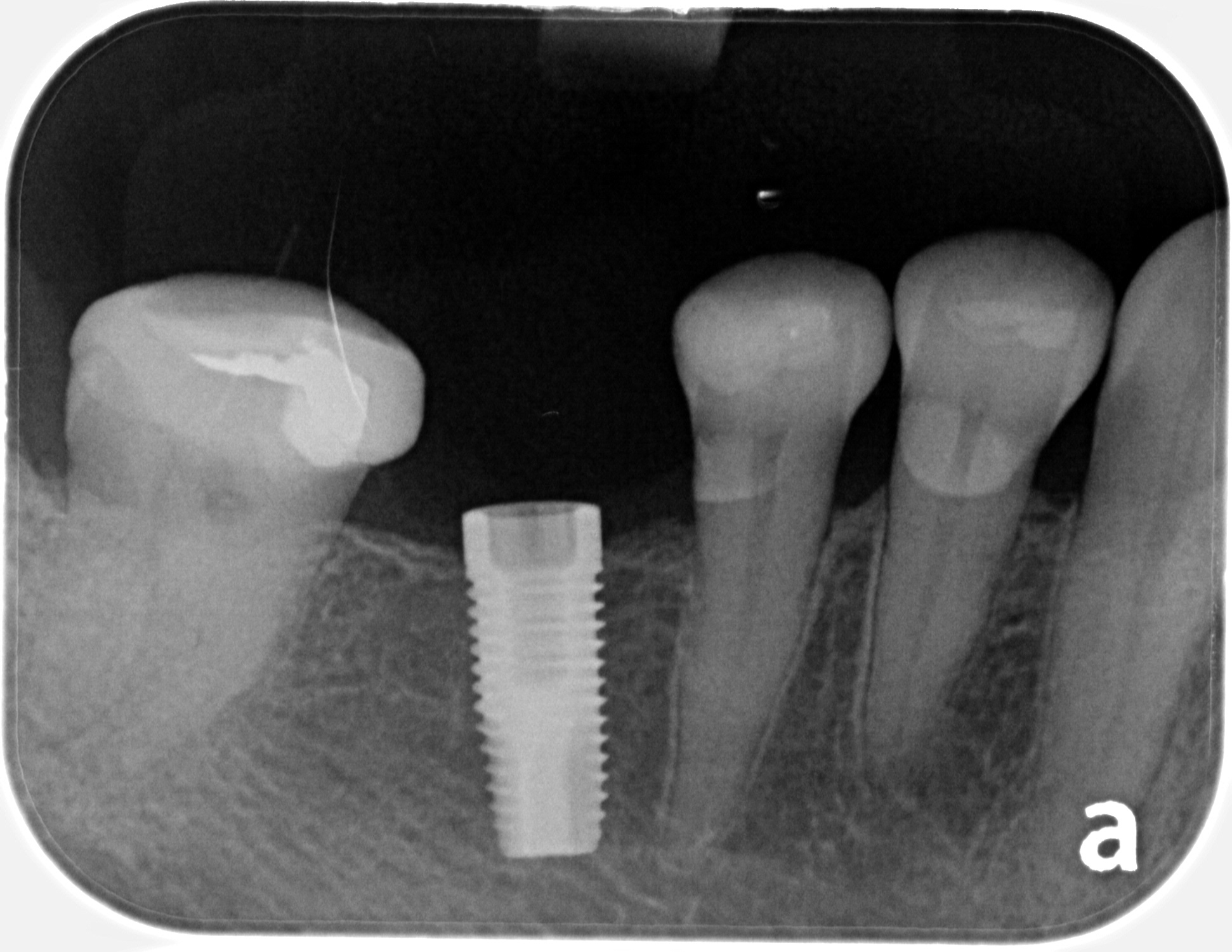 lower right dental implant