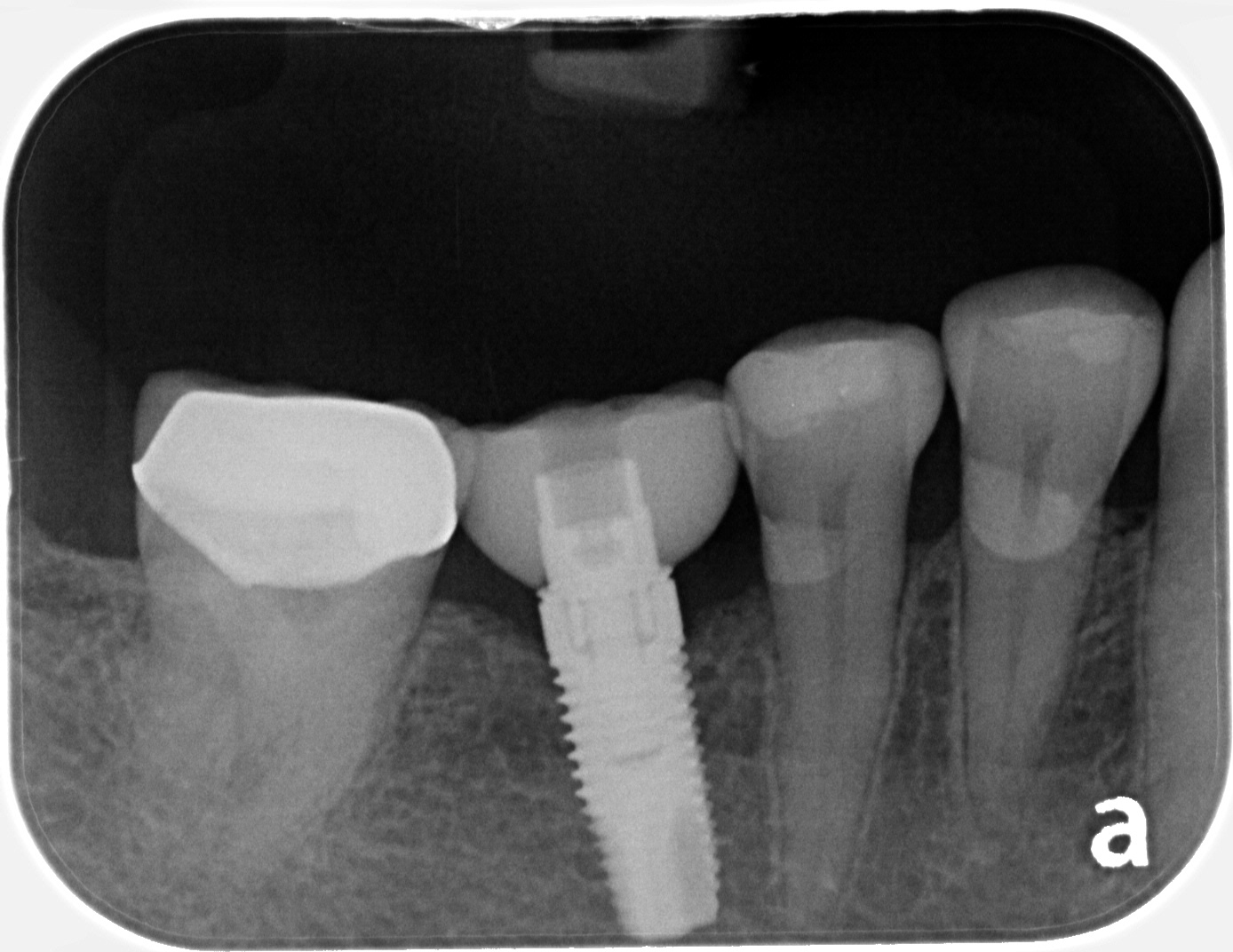 queen street dental implant