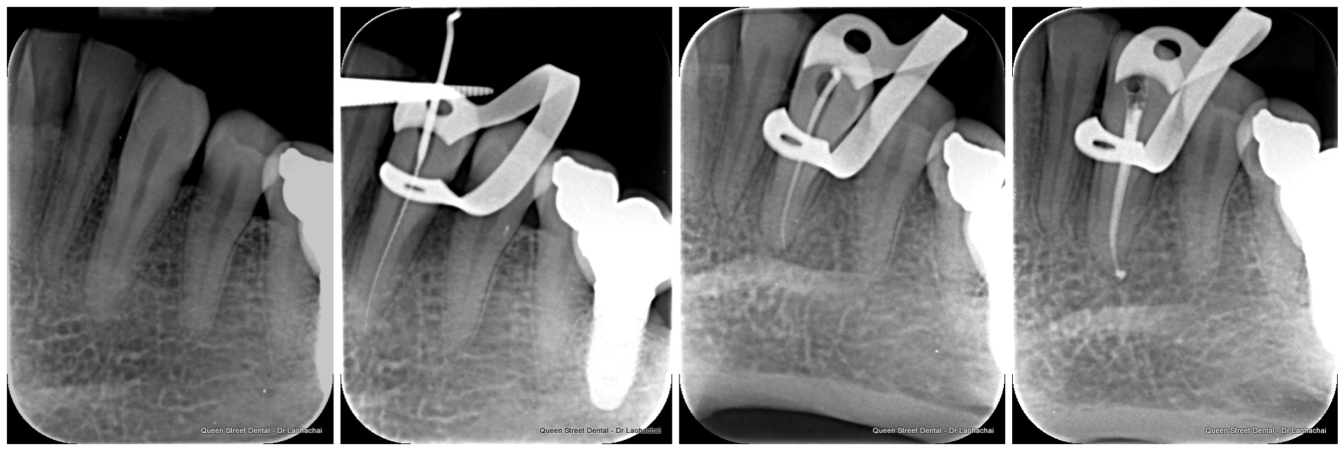 root.canal.treatment