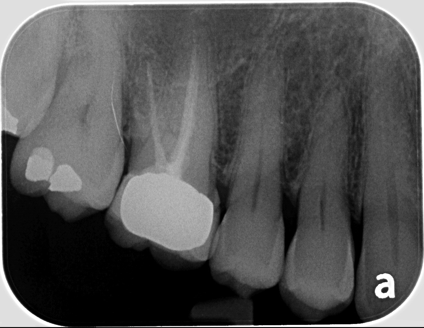 root canals 1